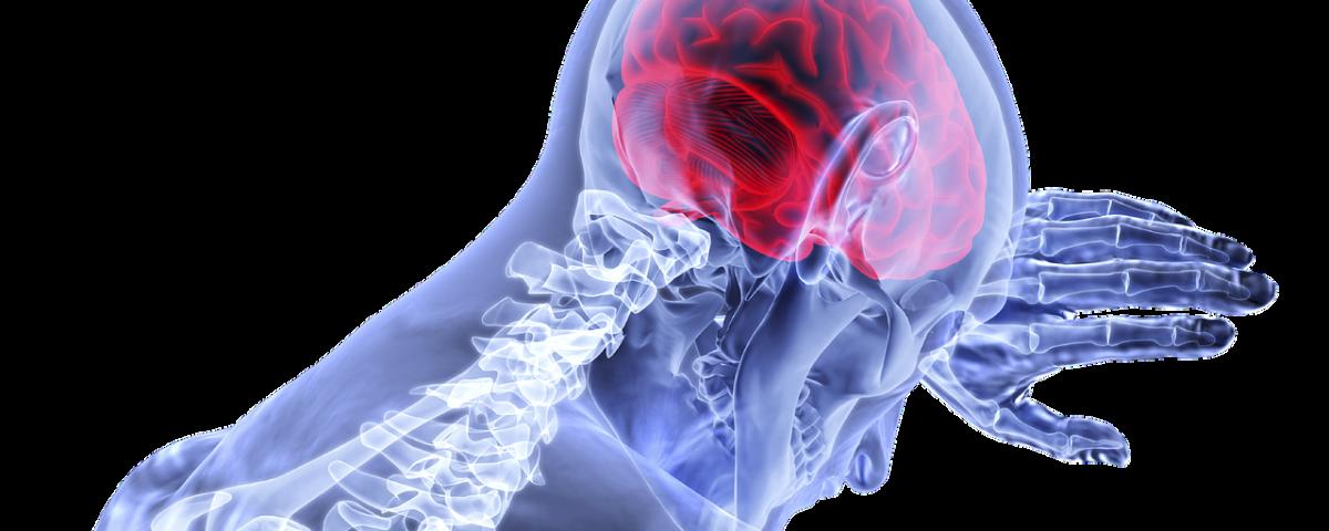 Parkinson - Eine fortschreitende Erkrankung des Gehirns. Foto: Pixabay
